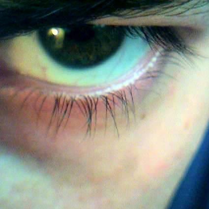 Staring_eye